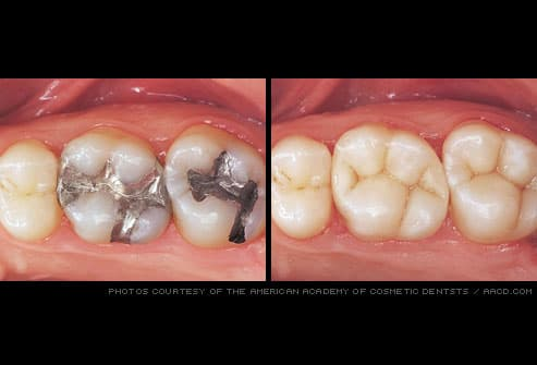 tooth-colored fillings replace amalgam fillings