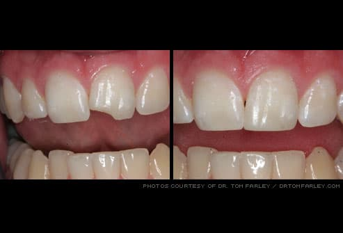 chipped tooth before and after dental bonding