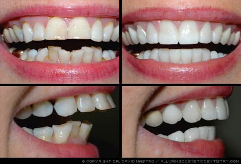 smile makeover corrects multiple dental problems