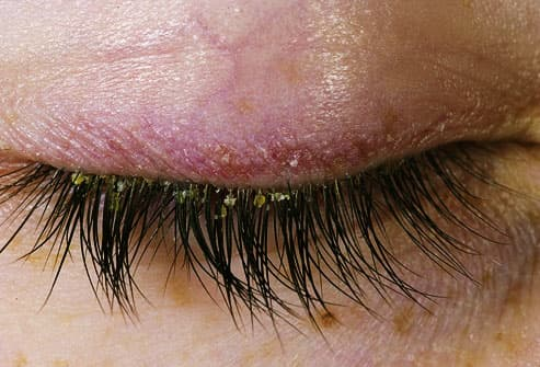 eyelid with dermatitis
