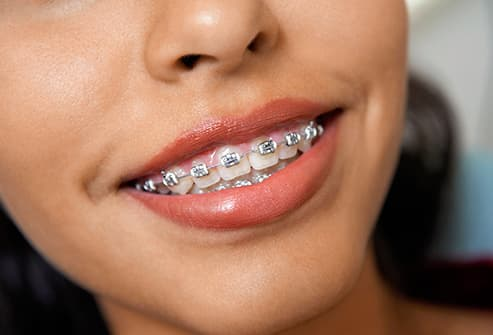 With Oral braces sex