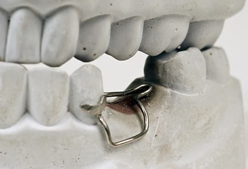space maintainer on dental model