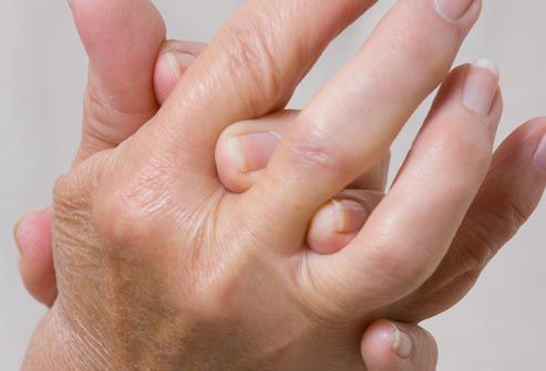 close up of arthritic hands