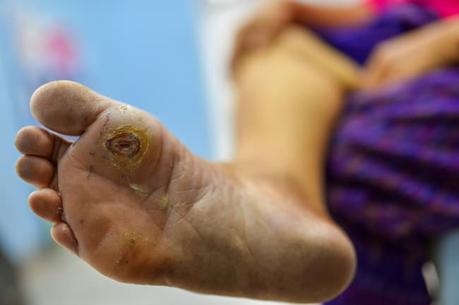 photo of foot ulcers
