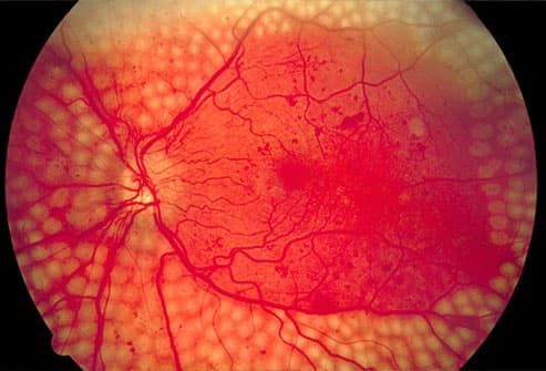 scatter laser treatment of diabetic retinopathy