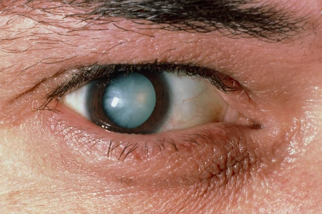 photo of cataract