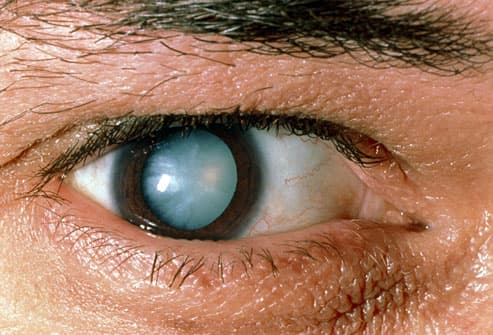 cataract in man's eye
