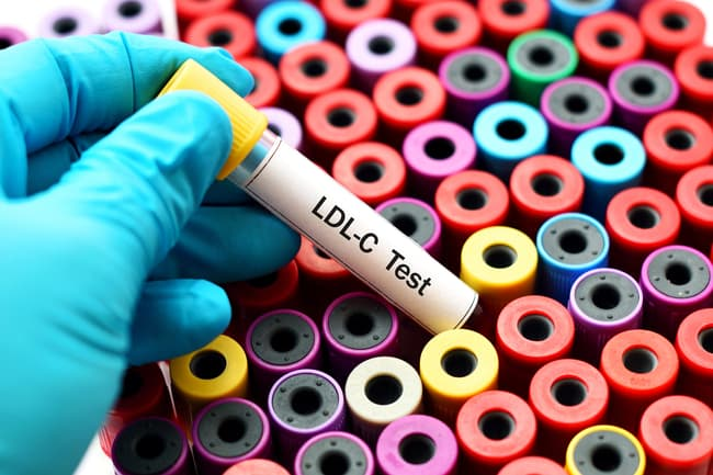 photo of cholesterol test