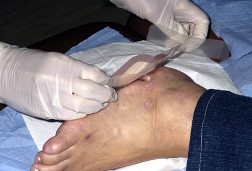 Doctor placing a dressing over a diabetic ulcer
