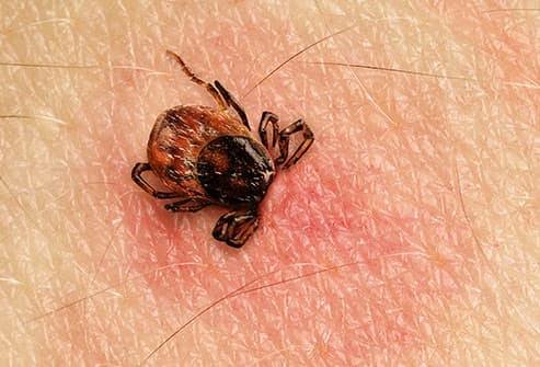 tick burrowing in skin
