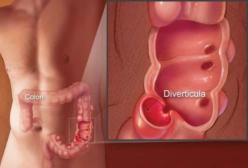 Colon Image Showing Diverticula