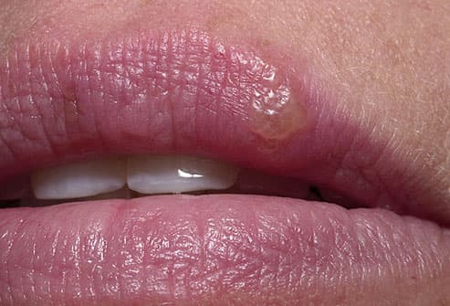 cold sore on girls lip
