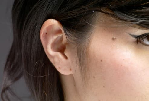 moles on girls face