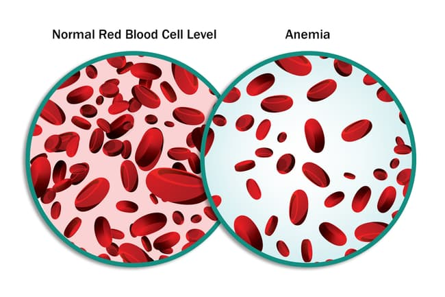normal red blood cells and anemia comparison