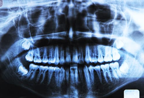 dental xrays
