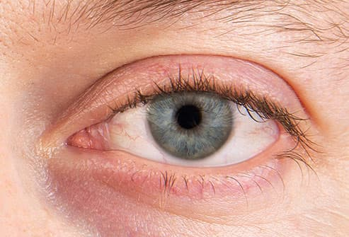 dry eye syndrome close up