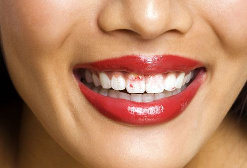 Smiling woman with red lipstick on her teeth
