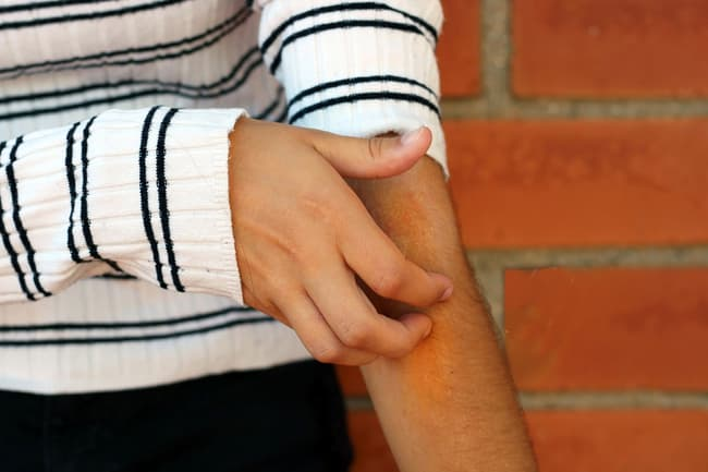 photo of scratching arm
