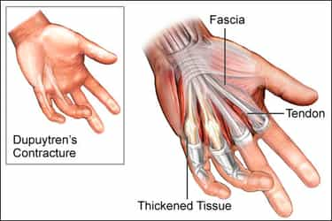 HAND SURGERY - Outpatient clinic - EMINEO Private Hospital