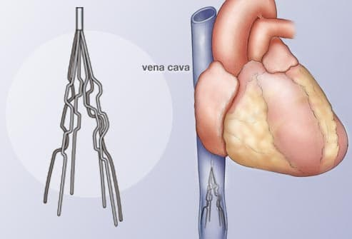 illustration of a vena cava filter
