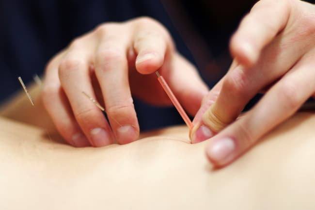 photo of acupuncture in hip