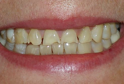 tooth enamel erosion caused by bulimia