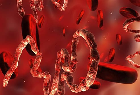 Slideshow: Ebola Virus Pictures: A Visual Guide