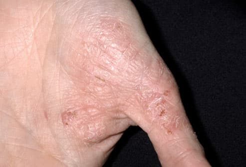 eczema pictures: what atopic dermatitis looks like, cradle cap, Skeleton