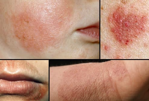 Eczema Triggers In Adults& Teenagers Movies