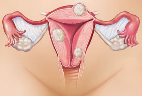 Endometriosis of the end of the vagina