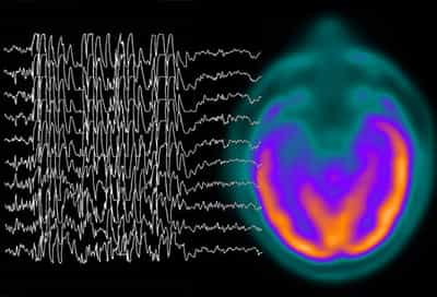 Brain scan and convulsion waves