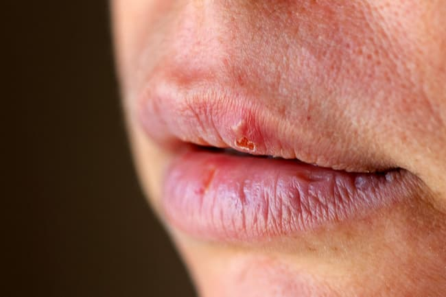photo of oral herpes