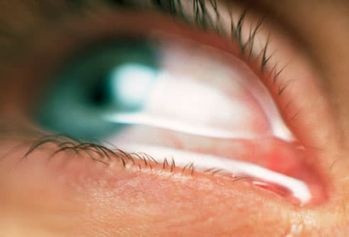 Eye Allergies: Symptoms, Triggers, Treatments With Pictures
