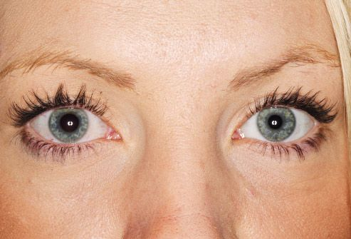different sized pupils on woman