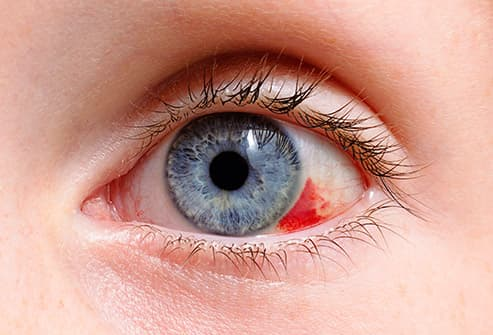 eye with blood in it