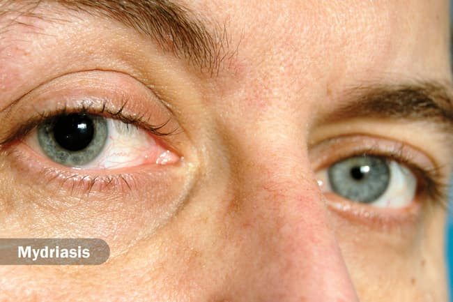 13 Eye Conditions That Could Indicate Potential Eye Health