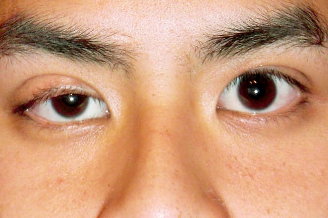 young man with droopy eyelid