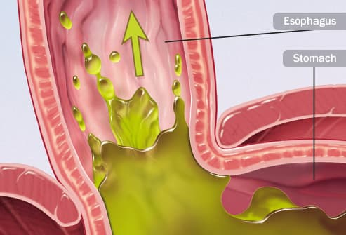 acid reflux illustration