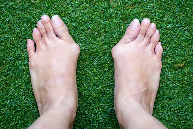 photo of feet with bunions