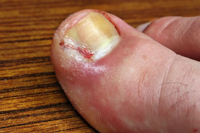 photo of ingrown toenail