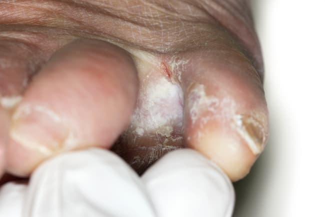 photo of fungal infection