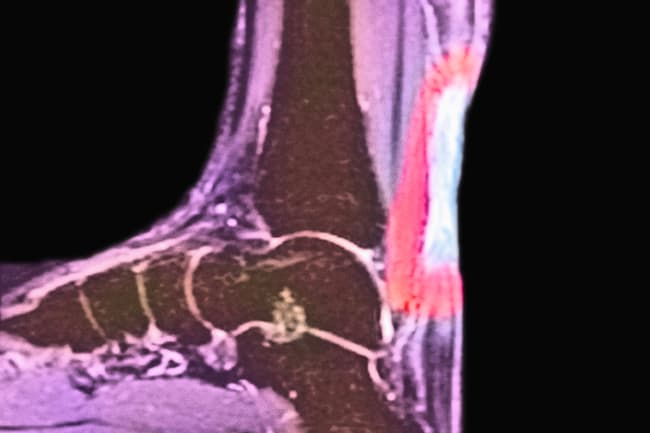 photo xray of achilles tendon injury