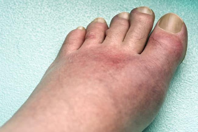 photo of gout in foot