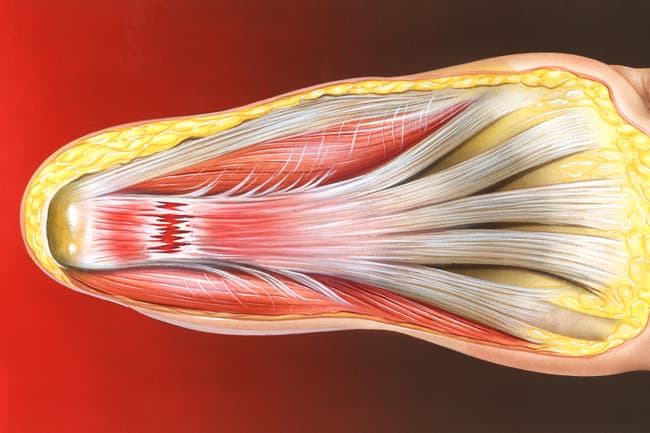 illustration of plantar fasciitis in heel