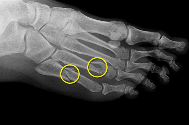 photo of stress fractures in foot