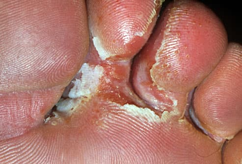 Athletes foot scaling between toes