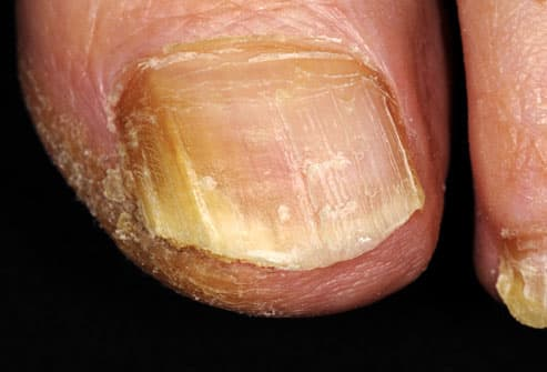Toenail with yellowing and cracking