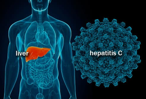 illustration of hepatitis C