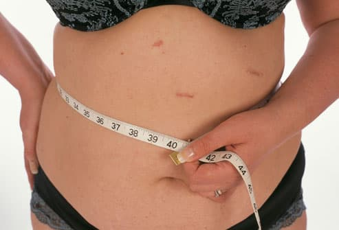 Slideshow Weight Loss Surgery What To Expect