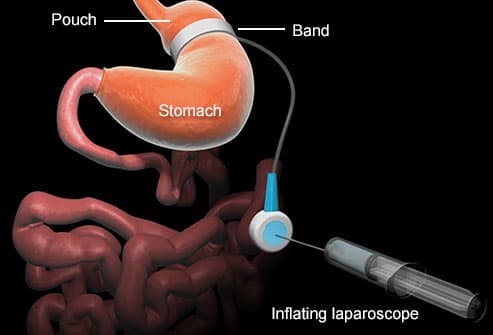 lapband procedure
